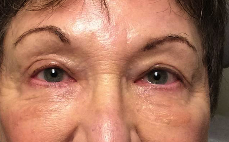 Lower Lid Blepharoplasty / Festoon Excision - The Zatezalo Group